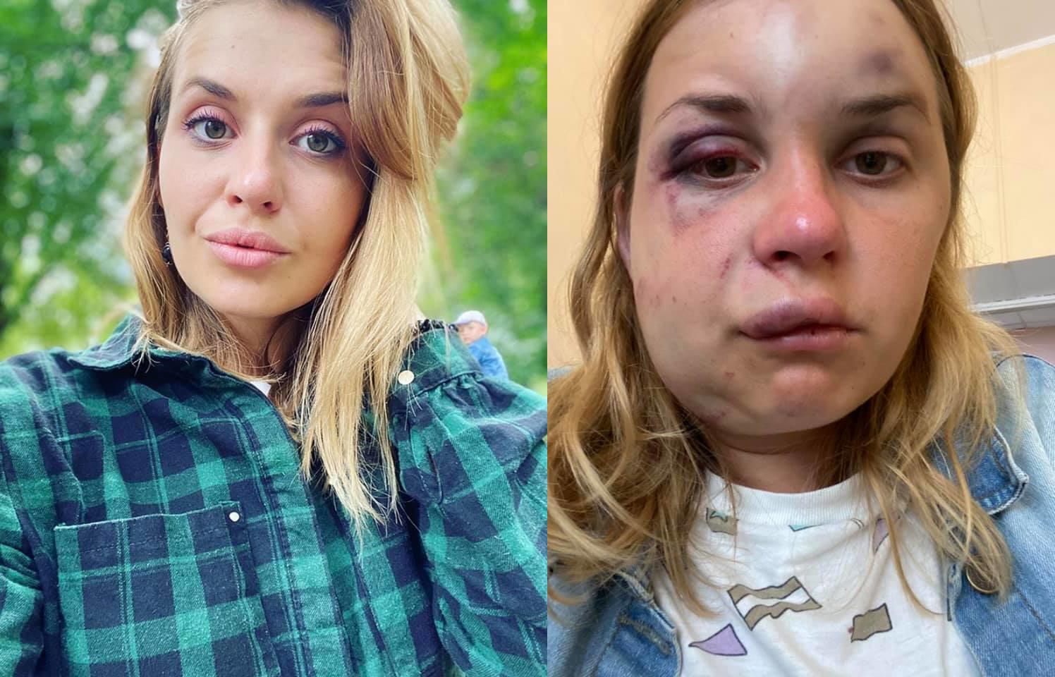 """У поїзді """"Укрзалізниці"""" жінку побили і намагалися зґвалтувати на очах у сина"""