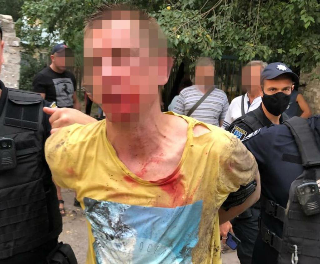 У Дніпрі чоловік кинув гранату в людей: є постраждалі