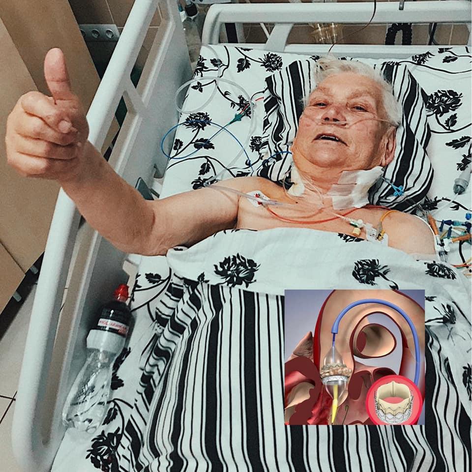 Без єдиного розрізу: лікар з Волині провів унікальну операцію 80-річній жінці у Львові