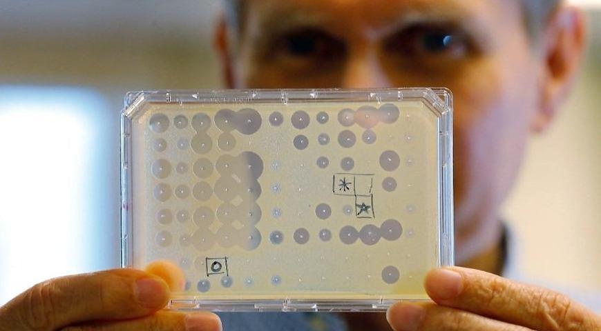 На порозі нової пандемії: медики заявили про небезпеку нових супербактерій