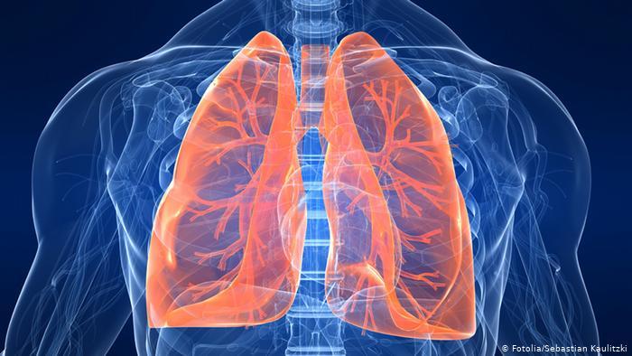 """Легені немов розриває гранатою: лікар розповів, як коронавірус """"тихо"""" вбиває людей"""