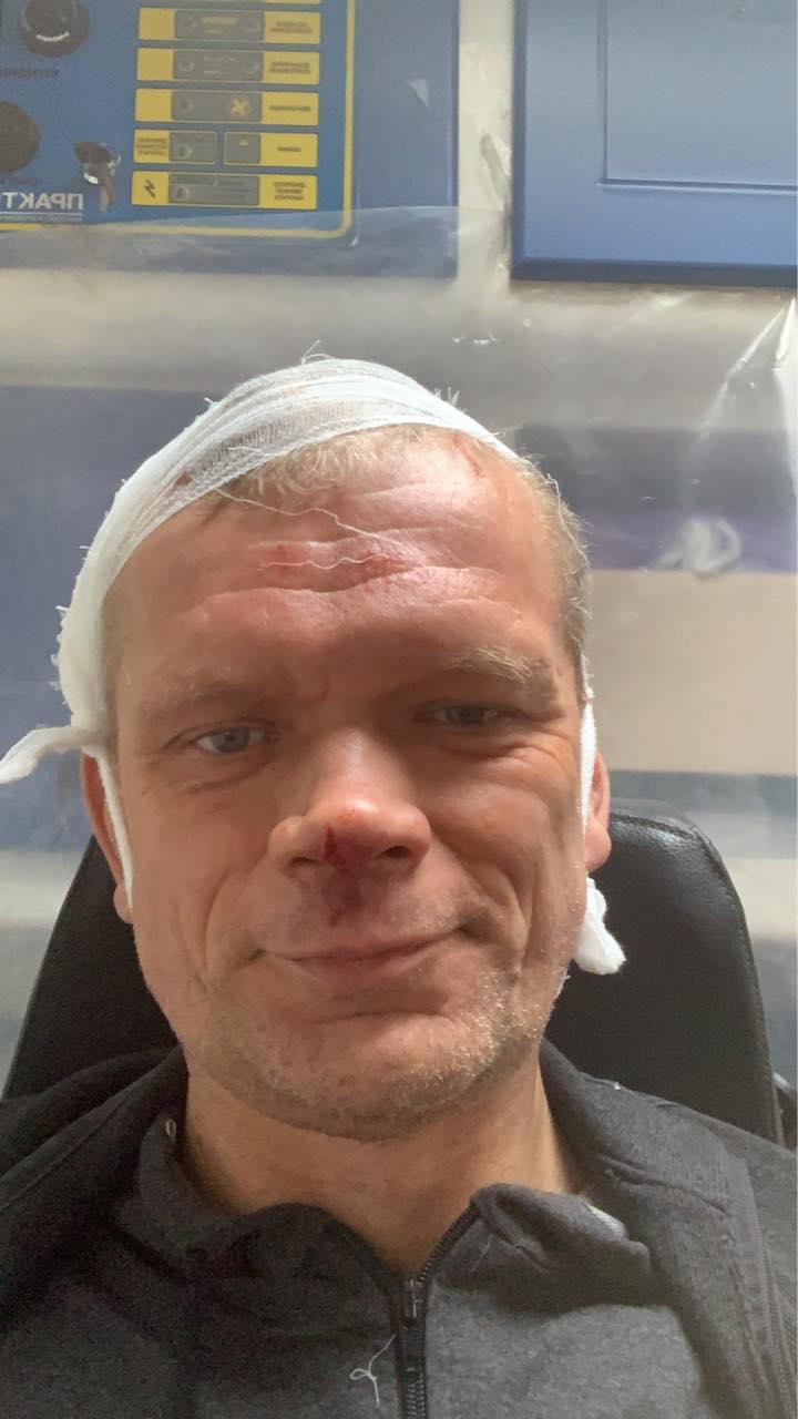Під Харковом люди з битами жорстоко побили екс-міністра, довелося зашивати голову: фото