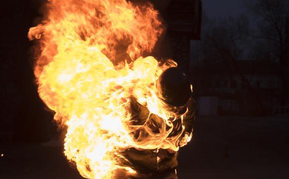 """""""Хотіли подивитися, що буде"""": друзі облили бензином та підпалили 14-річну дівчину"""