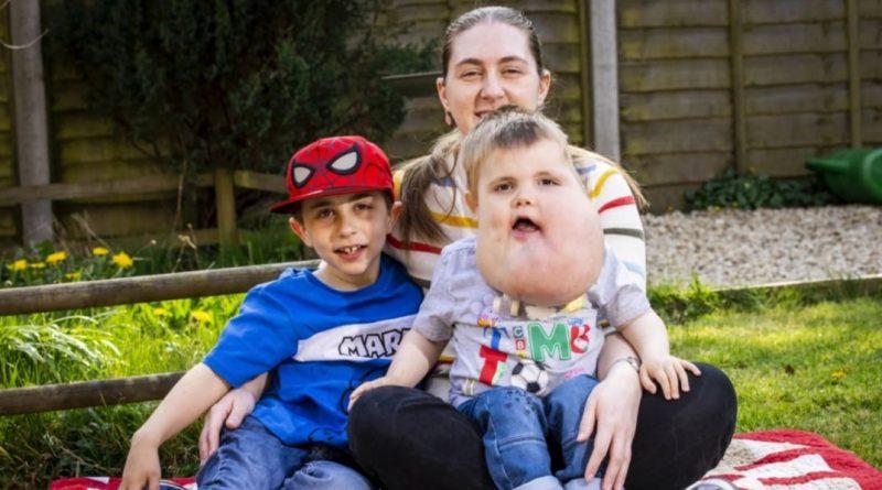 Хлопчик народився з кістою розміром з грейпфрут на обличчі