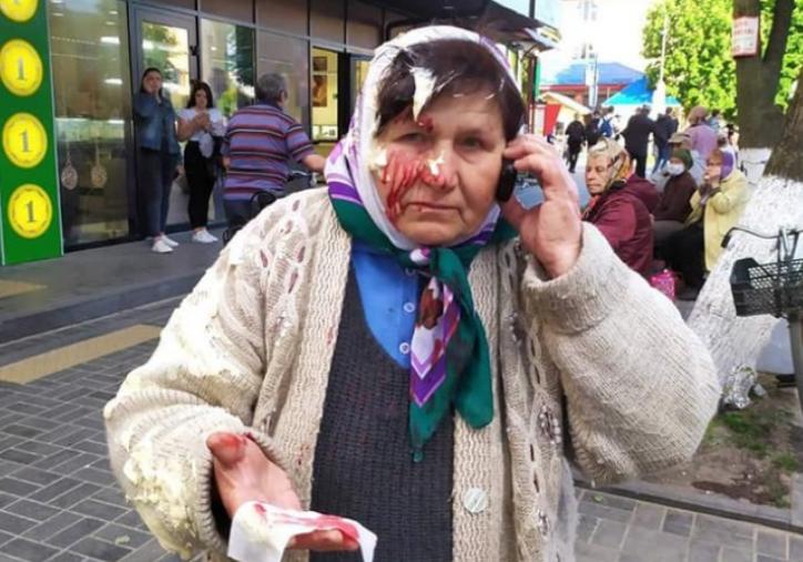 Під Рівним бізнес-леді розбила банку сметани на голові пенсіонерки, яка торгувала поруч