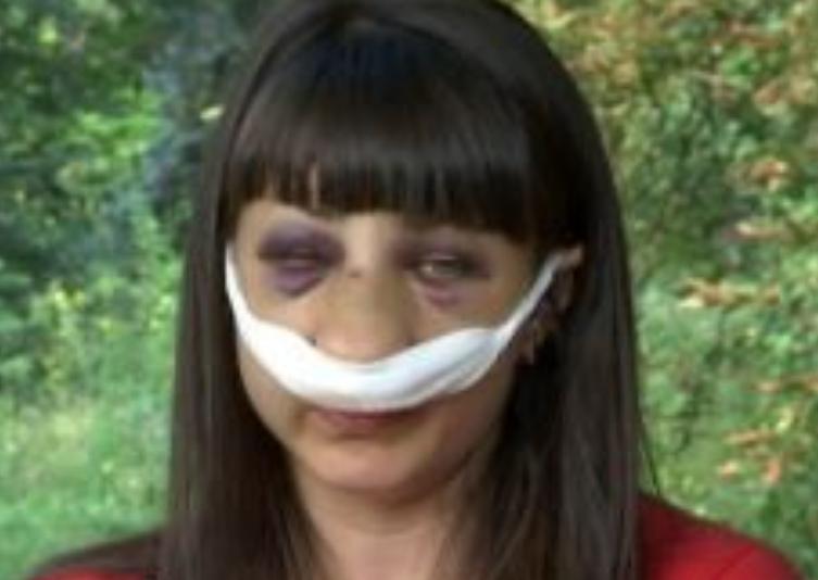 """""""Будеш боятись, поки горлянку не переріжу"""": на погрози кривдника жінки у Запоріжжі"""