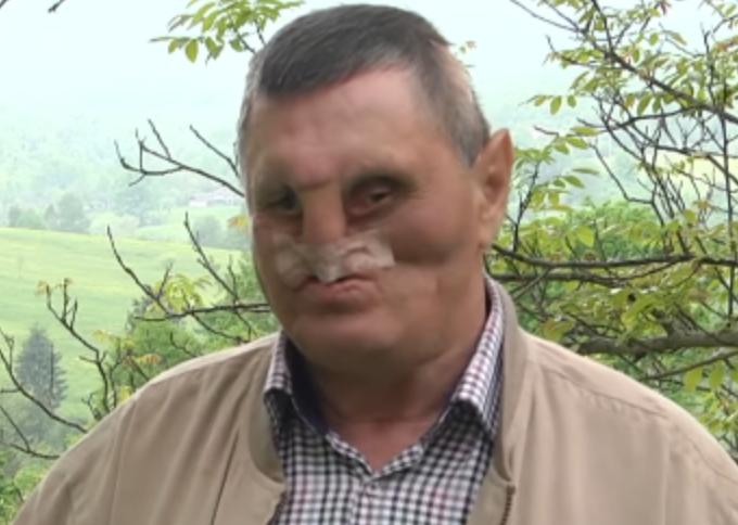 На Прикарпатті чоловік дивом вижив після зустрічі з ведмедицею. ВІДЕО
