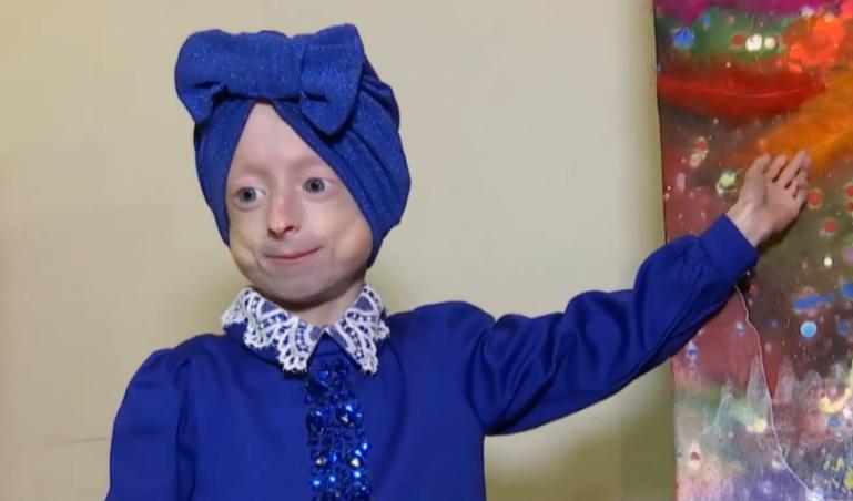 У Вінниці померла дівчинка з рідкісним синдромом передчасного старіння